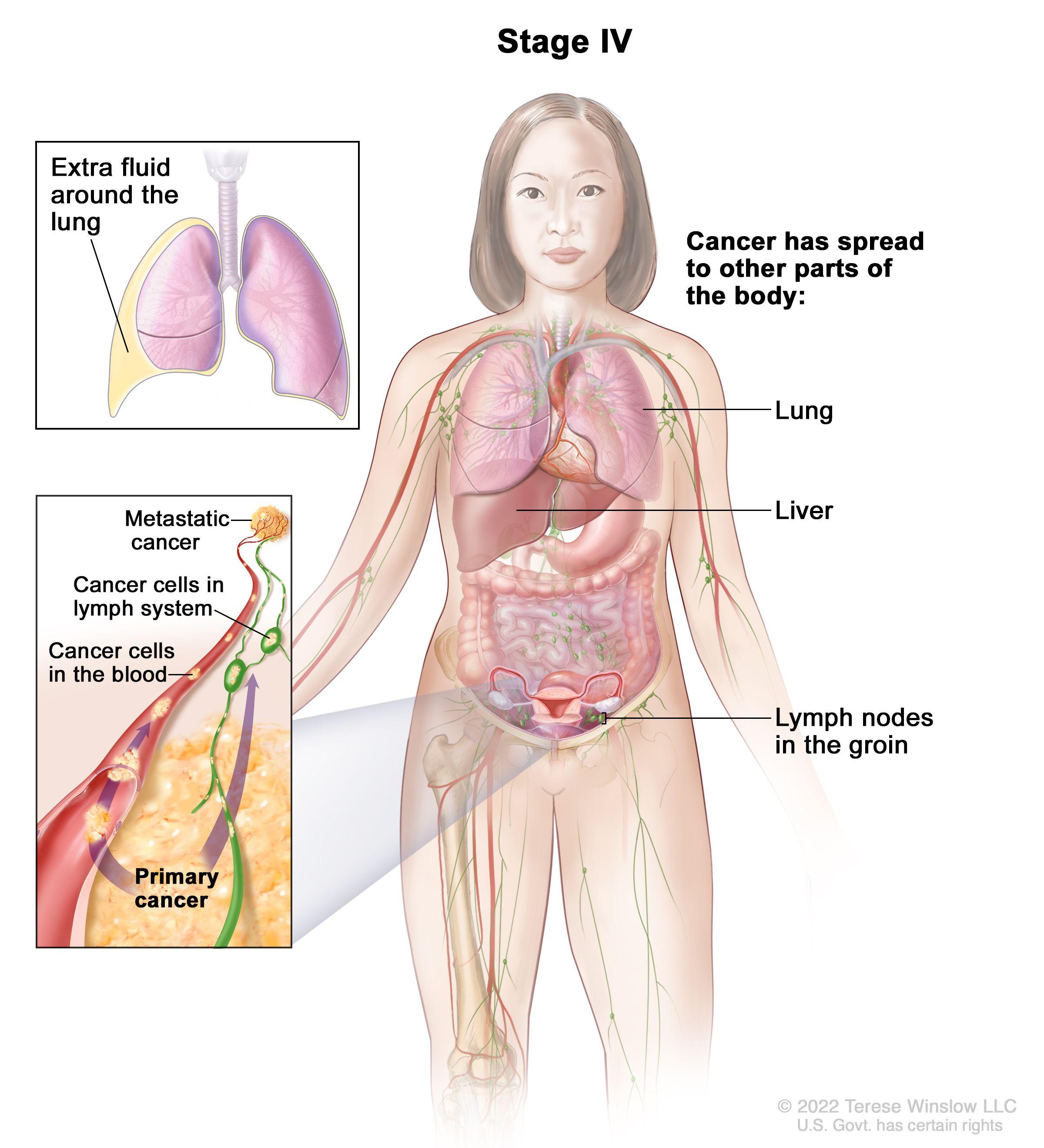 peritoneal cancer progression