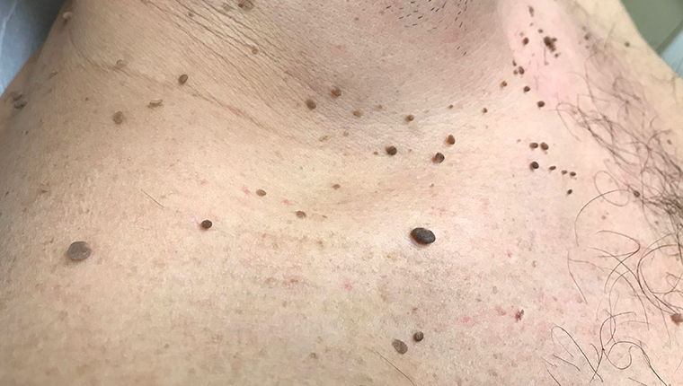 Should papillomas be removed - Do breast papillomas have to be removed