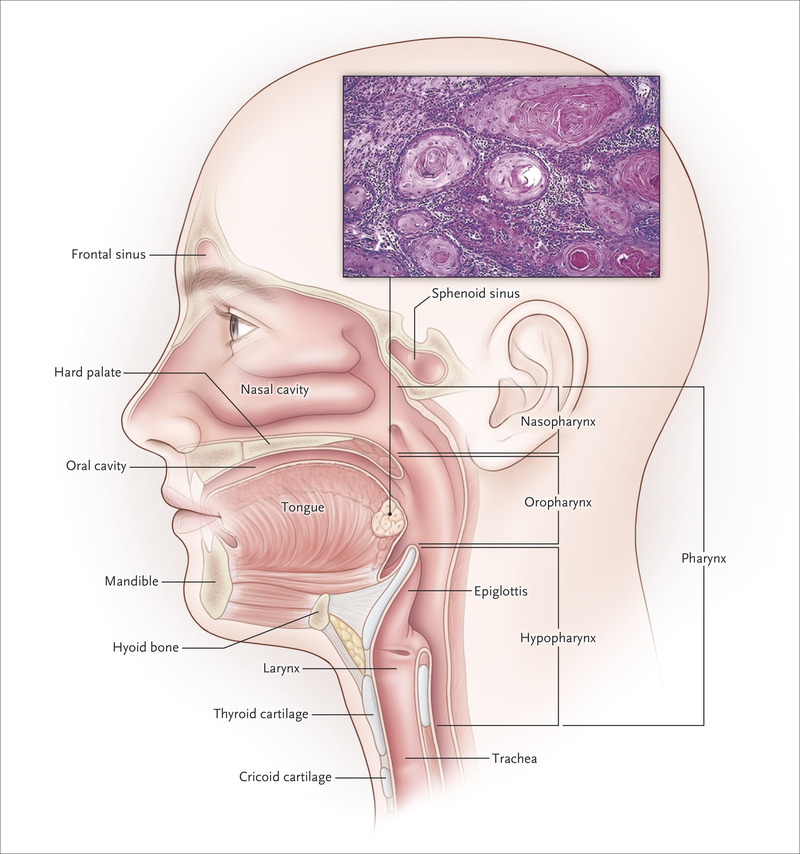 hpv related head and neck cancer symptoms)