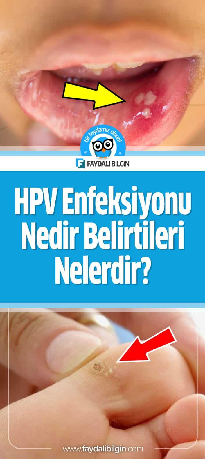 Hpv enfeksiyonu tedavisi, Human papilloma virus enfeksiyonu
