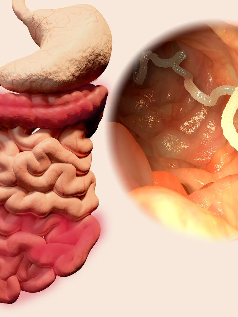 Paraziti u vasem telu, Papiloma uzrokuju paraziti u vasem telu, umor photos images pics