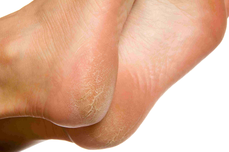papilloma feet)