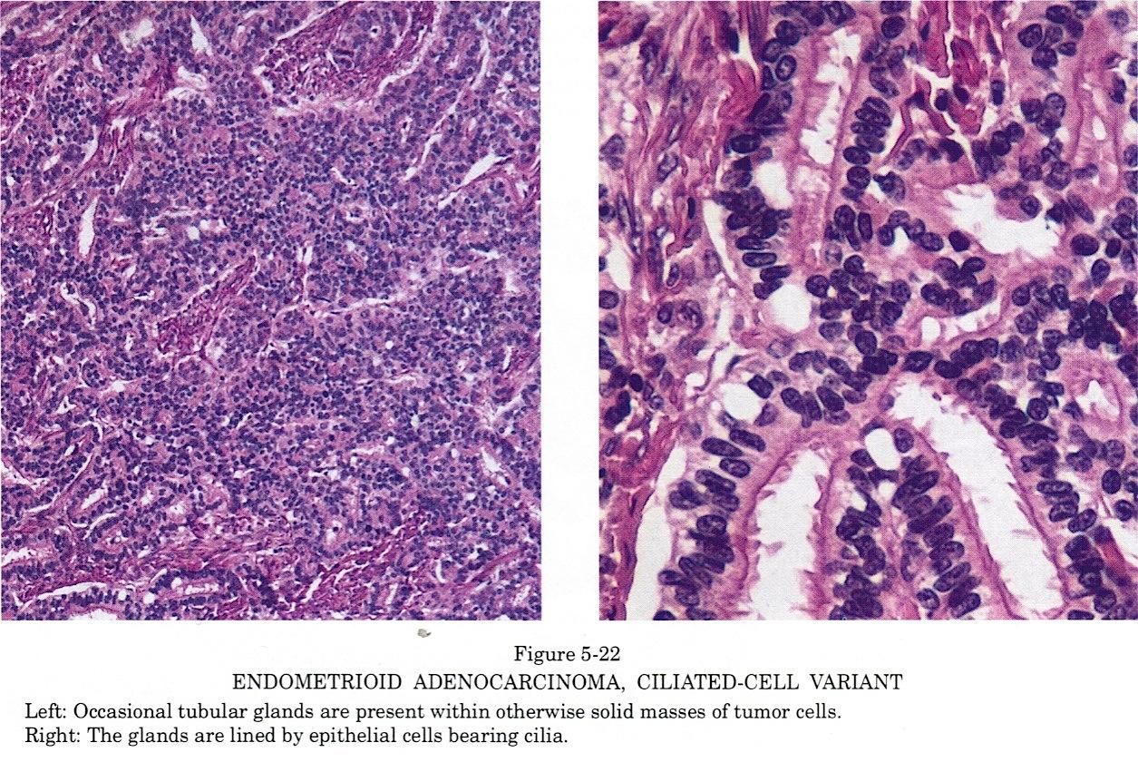 endometrial cancer pathology outlines reproducerea giardiozei