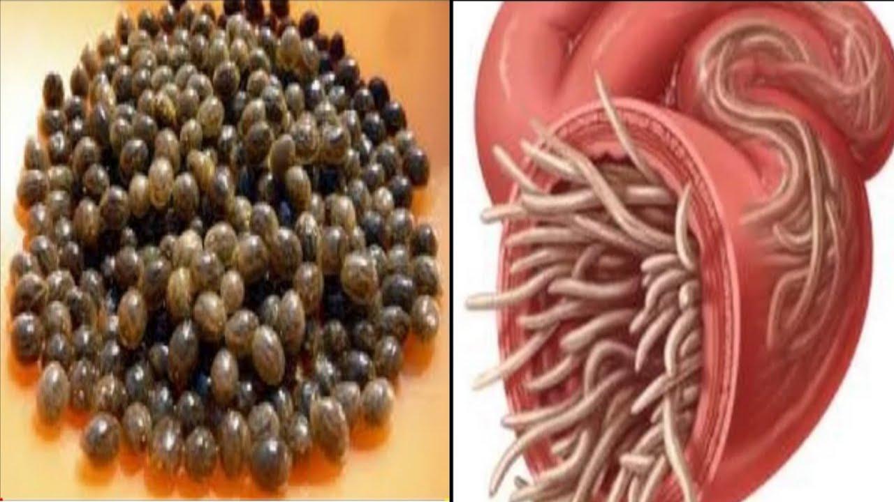 dieta de detoxifiere de 21 zile como eliminar los oxiuros con medicina natural