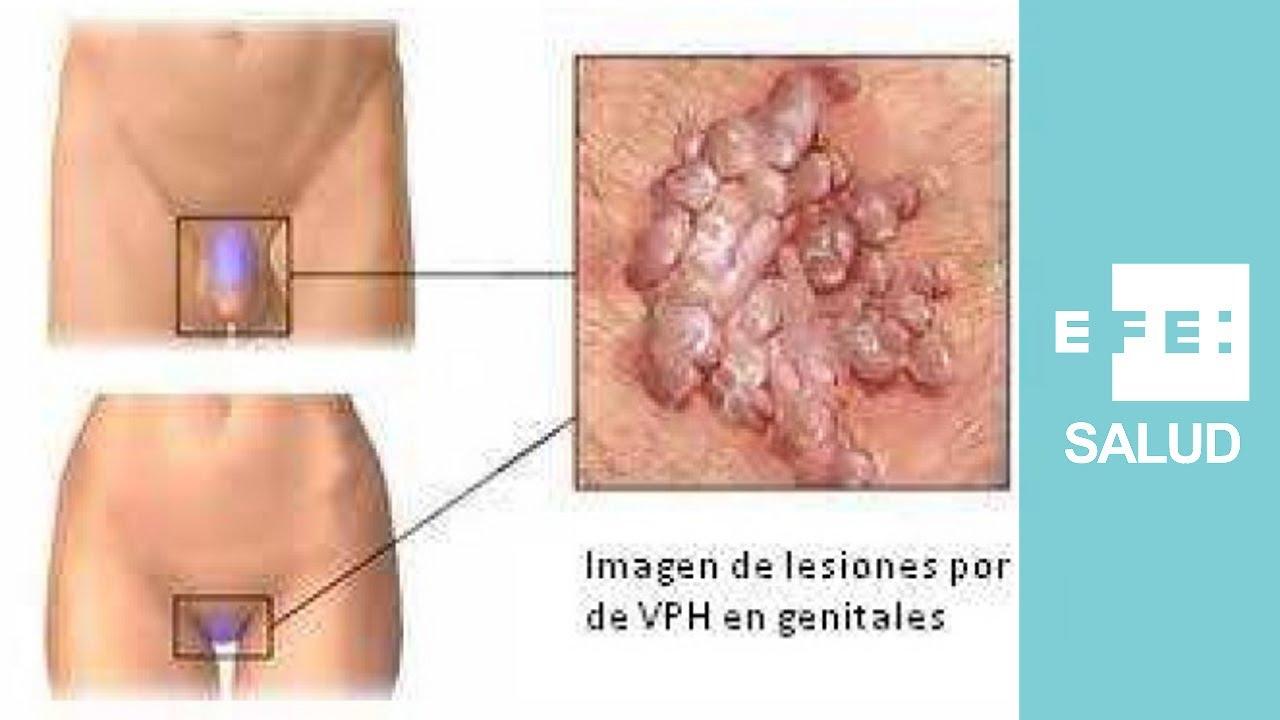 Sintomas de virus papiloma en la mujer., Sintomas del papiloma virus en la mujer