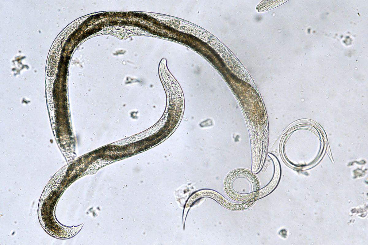 Oxiurii la adulti simptome - Oxiuri – totul despre boala parazitara