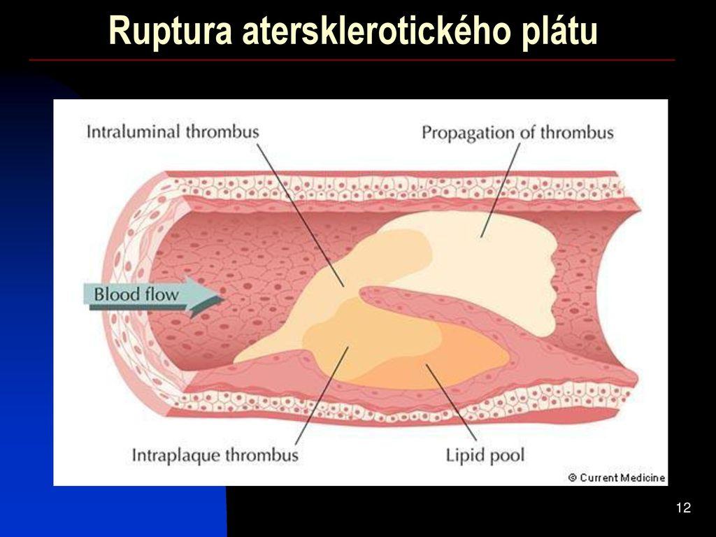 viermi în helminți umani anemie fetala