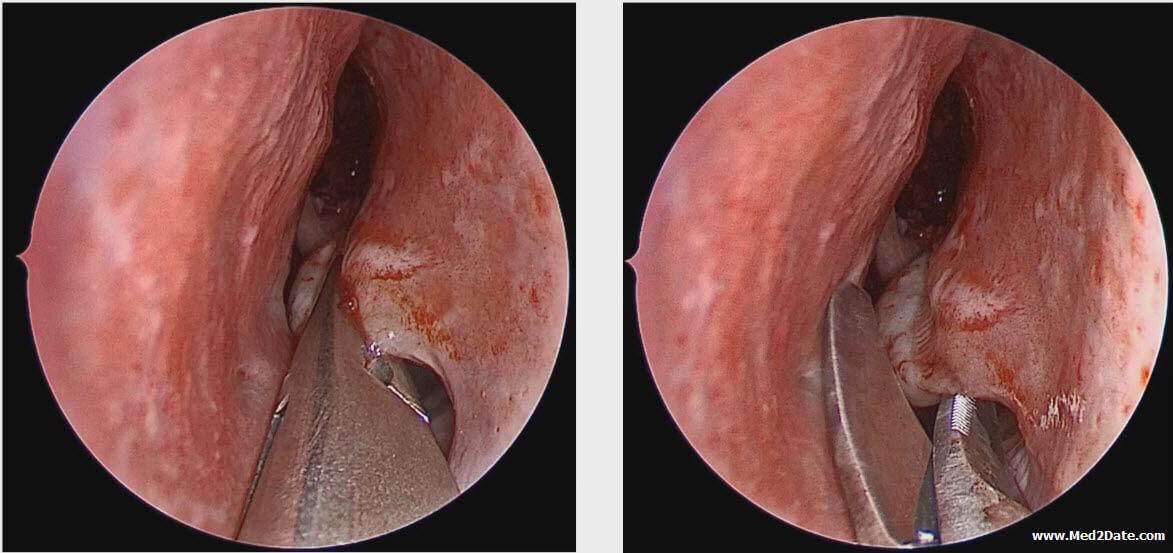 inverted papilloma treatment