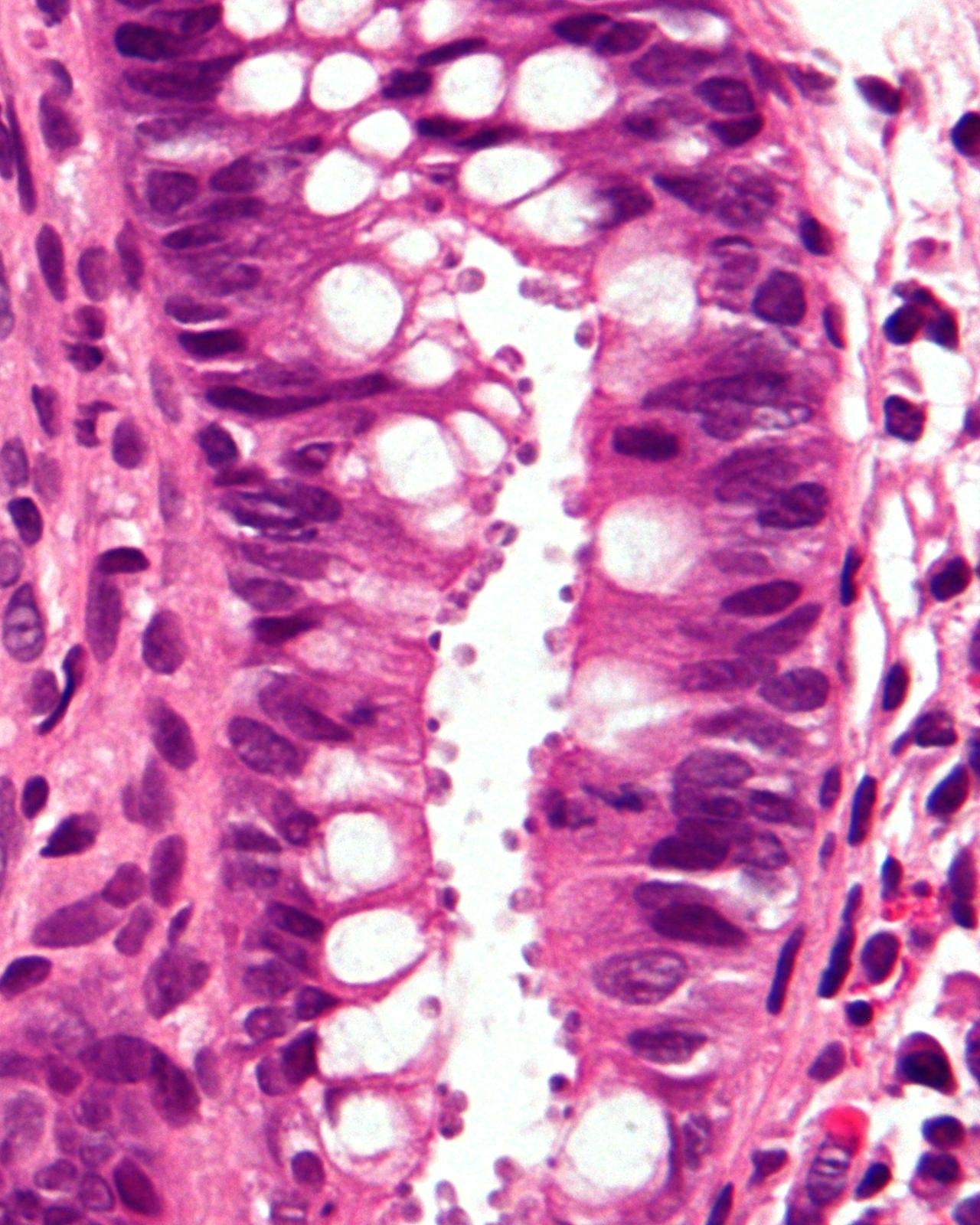 paraziti colon)