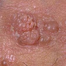 hpv symptomes homme