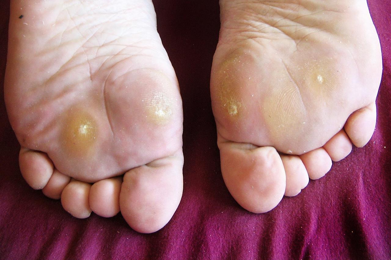 Wart on my foot, Wart on foot sole - triplus.ro