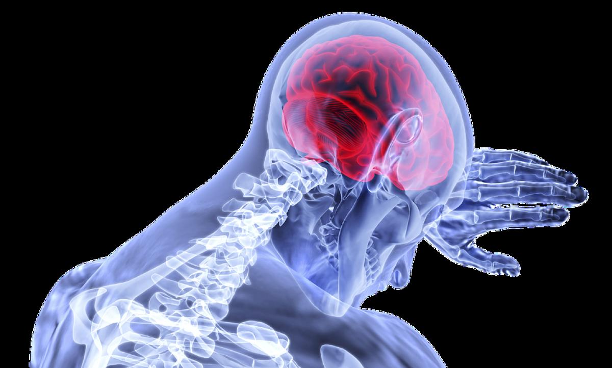Tumoră cerebrală malignă (cancer la creier)