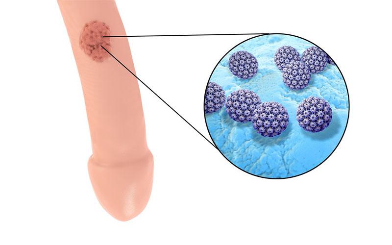 papillomavirus nell uomo)