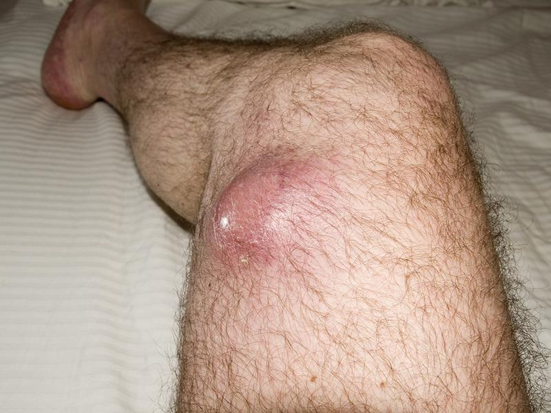 sarcoma cancer skin