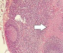 Paraziti jetre Cum se vindecă fergusele adulte