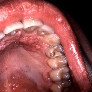 Hpv virus on throat Hpv virus causes throat cancer - triplus.ro