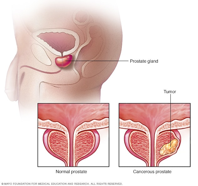 aggressive cancer in prostate)