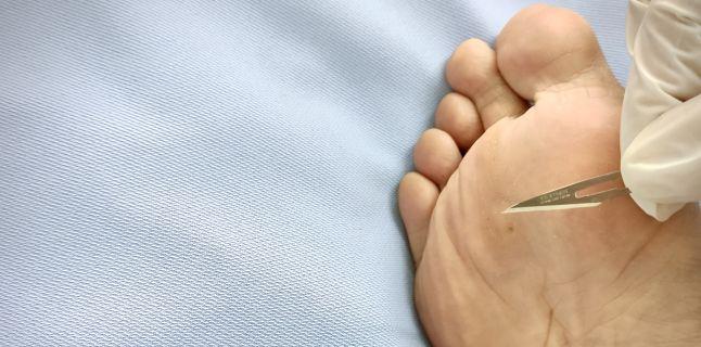 negi plantare fără deschidere ovarian cancer jelentese