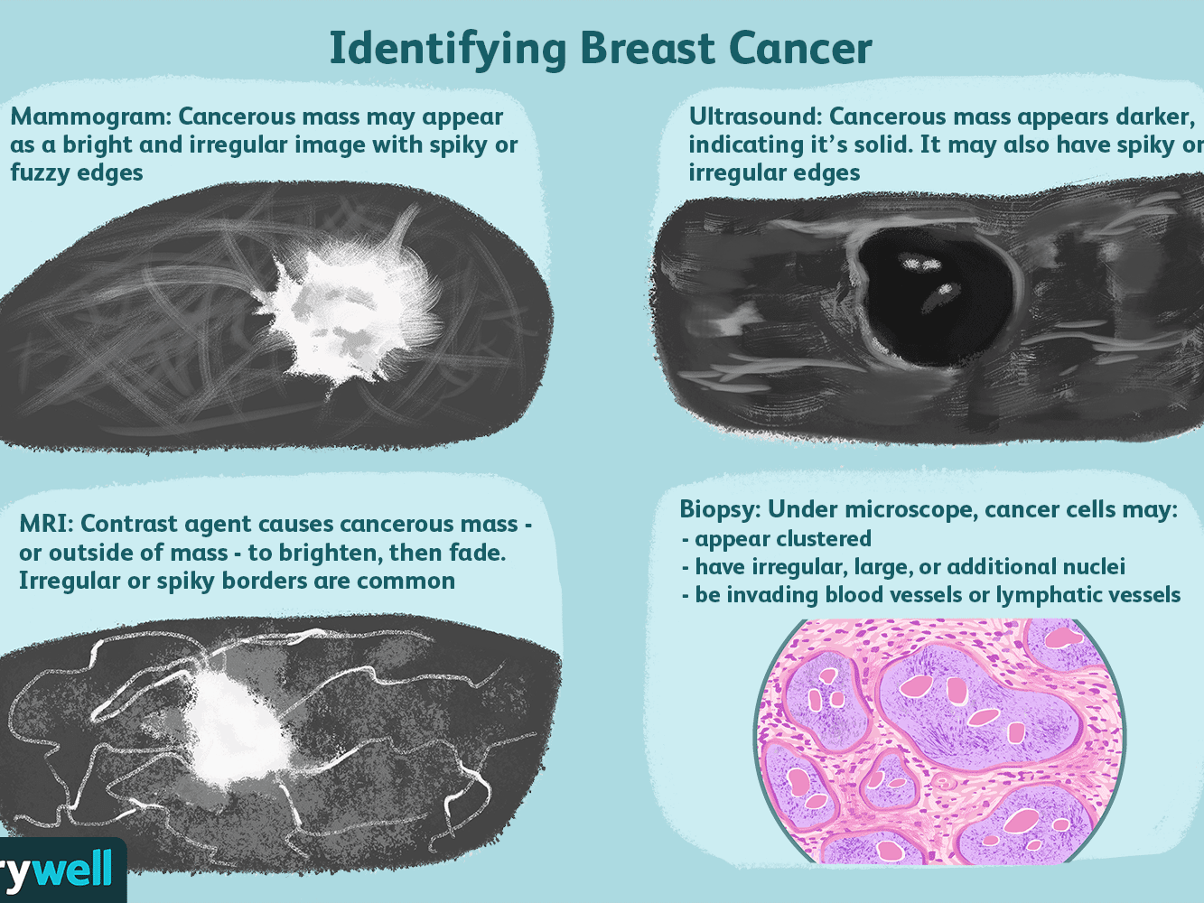 cancer benign tumour cyst