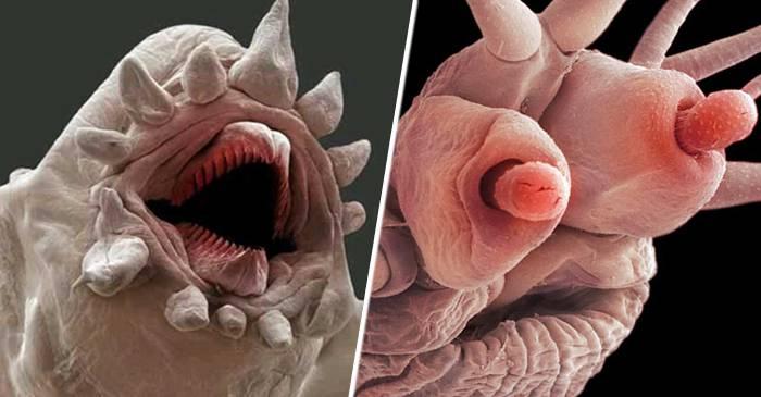 paraziții pielii sunt asemănătoare viermilor)