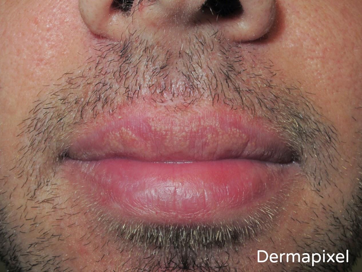 papiloma en los labios dela boca tratamiento)
