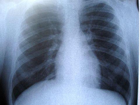 Paraziți pentru cancerul pulmonar