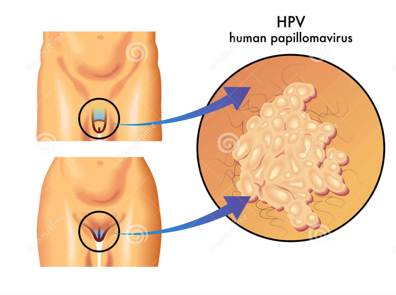 vaccino hpv verruche)