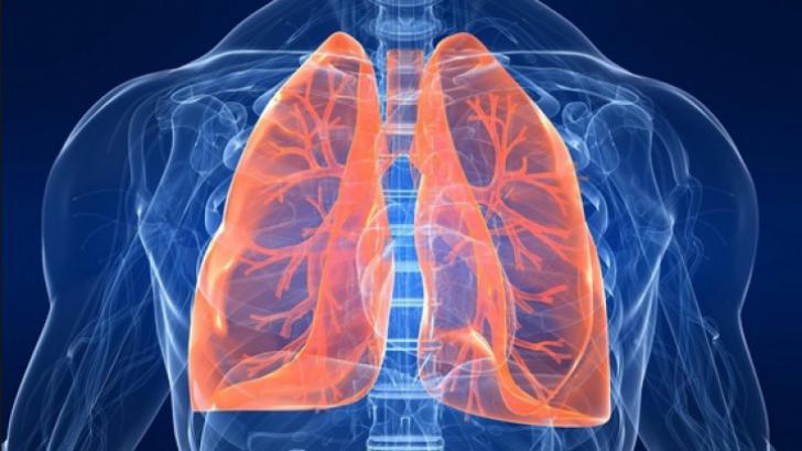 Cancer pulmonar (bronhopulmonar, plamani)