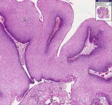 Condyloma acuminata pathology, Condyloma acuminata pathology outlines