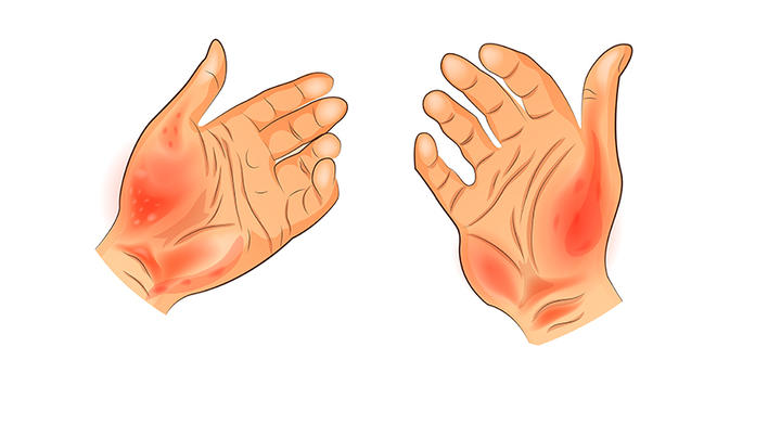 dermatita alergica de contact