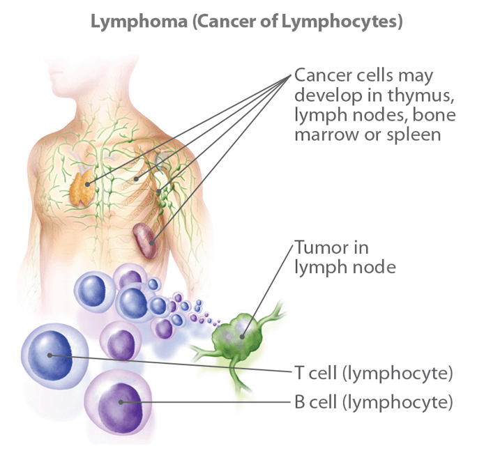 cancer hodgkin lymphoma treatment