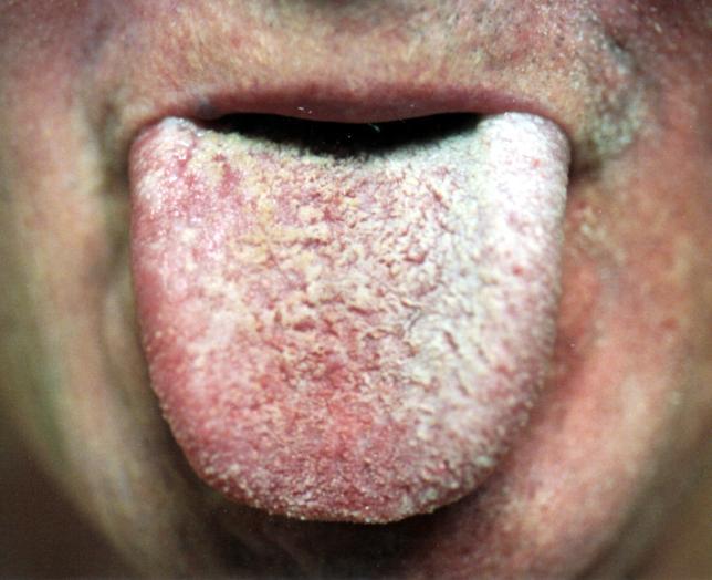 Tongue papillae Hypertrophy of tongue papillae treatment
