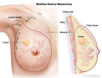 intraductal papilloma removal procedure)