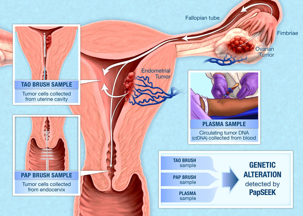 does hpv cause endometrial cancer)
