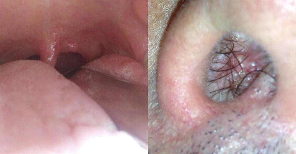 papilloma virus gola sintomi