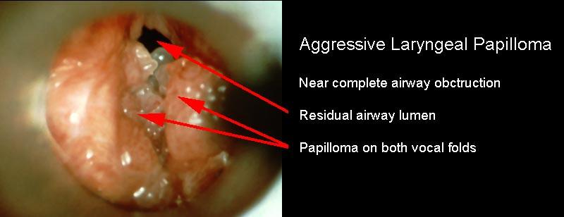 upper respiratory tract papillomas
