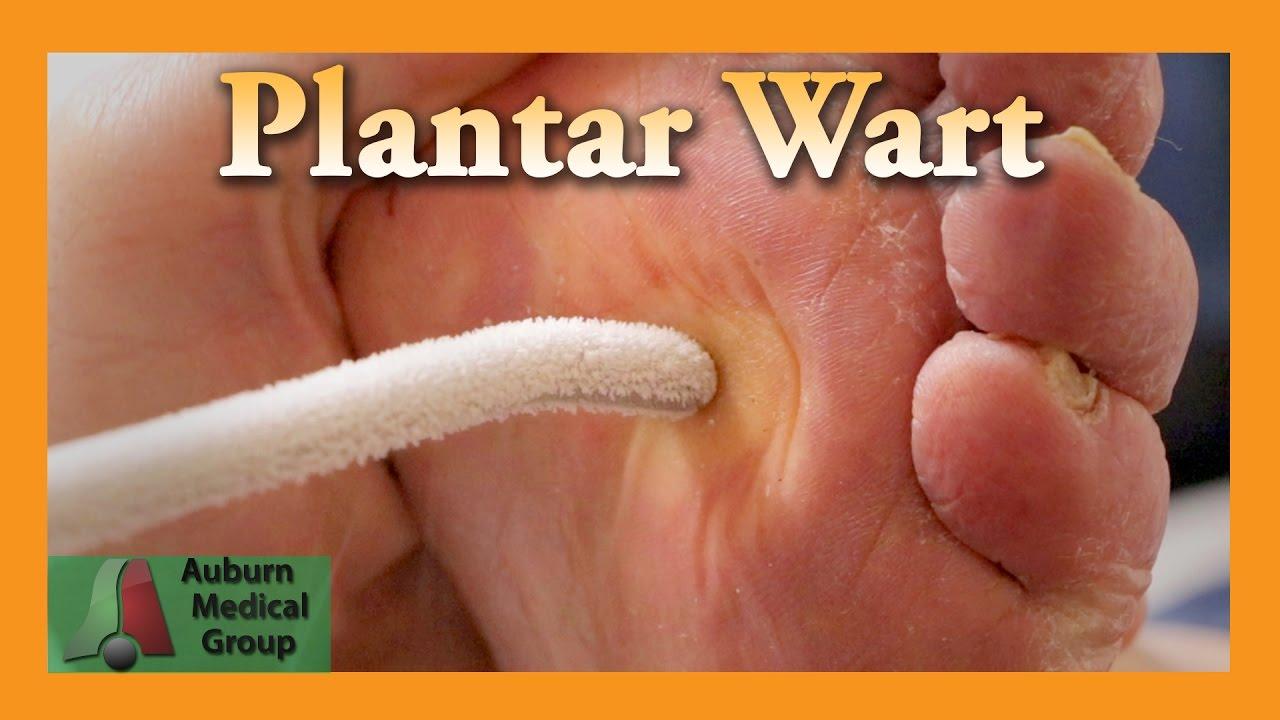 wart treatment toe