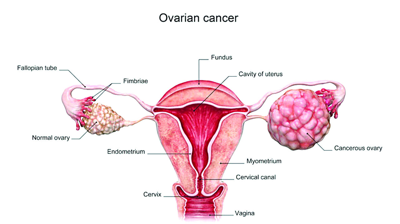 ovarian cancer fallopian tube