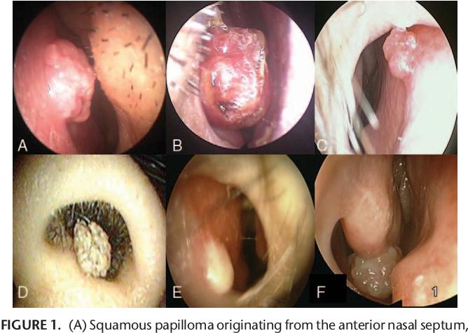 squamous papilloma nasal septum)