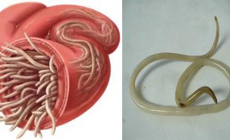 eliminare parassiti intestino