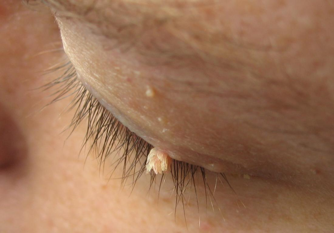 papilloma removal face)
