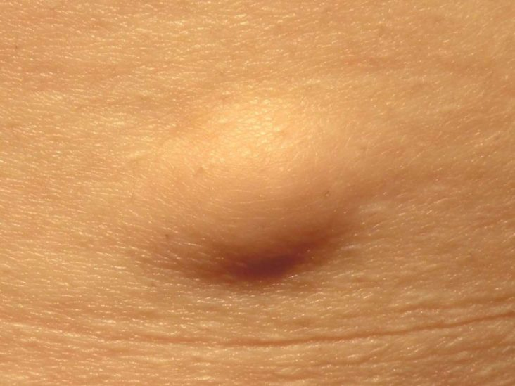 papiloma in genital