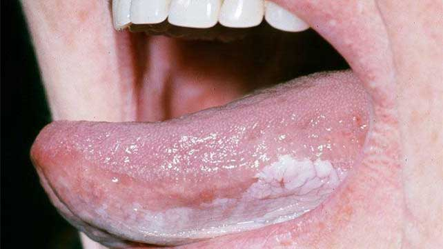hpv white tongue