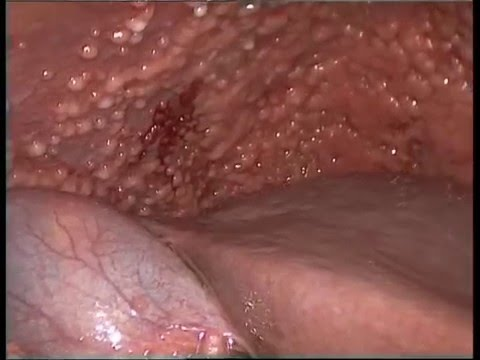 peritoneal cancer nodules