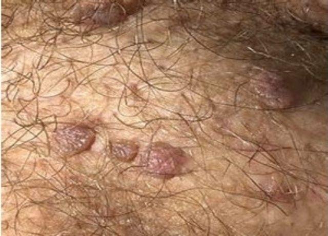 papillomavirus nedir)