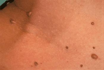 papillom entfernen hautarzt