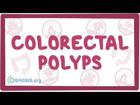 colorectal cancer osmosis