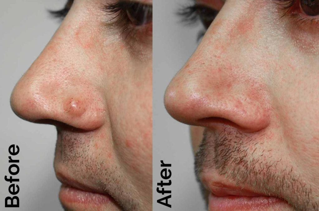wart treatment on face