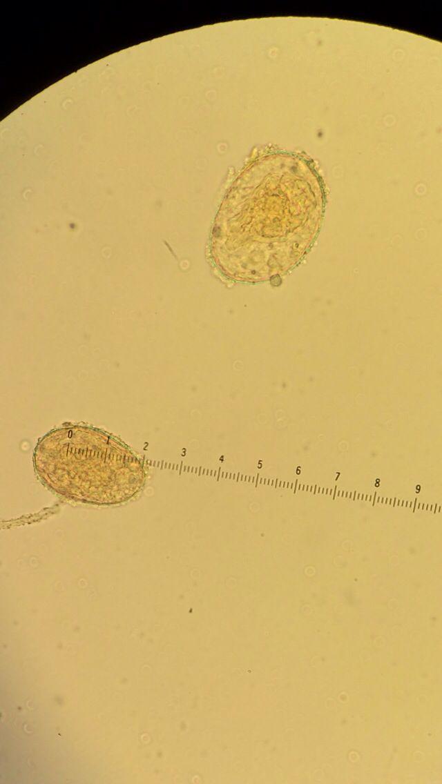 36 Best Paraziti images   Asistente, Laborator, Medicină