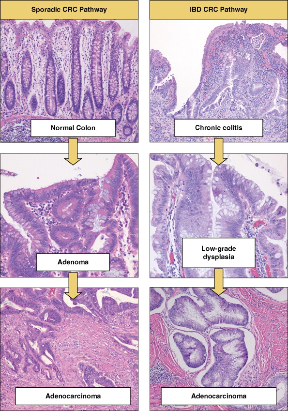 gastric cancer tumor marker